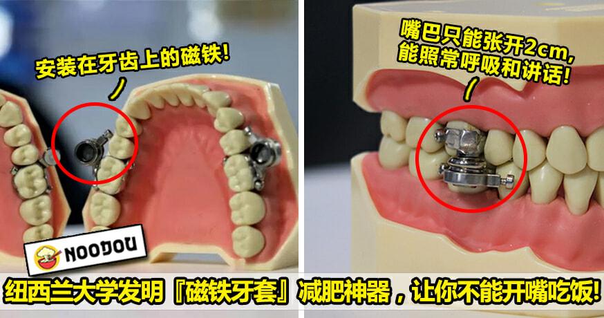 磁铁牙套Psd